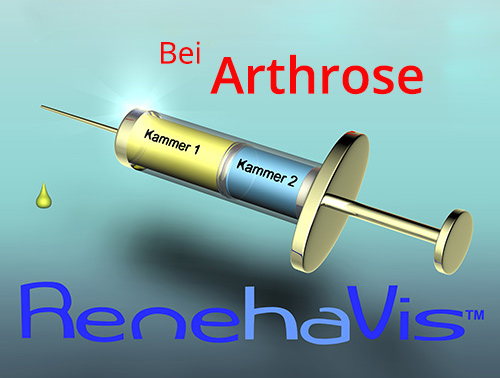 Bei Arthrose Renehavis